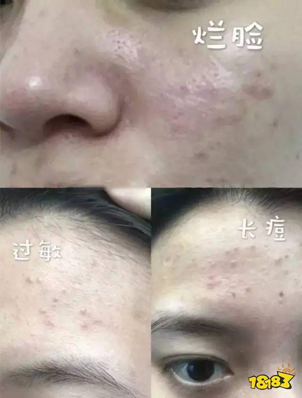 洗脸10次不如用它一次?亲眼看脏东西往外排,毛孔没垃圾,年轻又显白